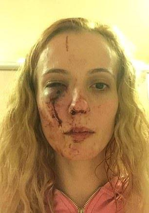 Mamma picchiata da baby gang - Leggilo