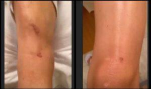 Aurora Ramazzotti ha un incidente: le sue condizioni fisiche
