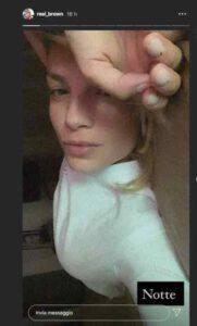 Emma Marrone confessa un nuovo problema di salute su Instagram