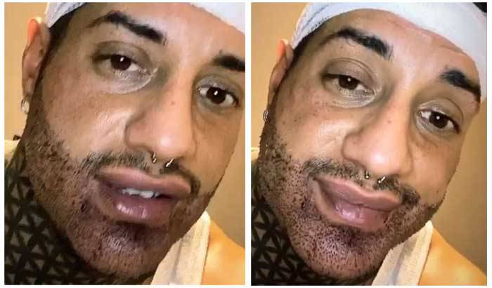 Francesco Chiofalo e l'intervento alla barba