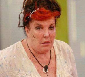 GF VIP: Svelato il motivo delle macchie sul volto di Patrizia De Blanck